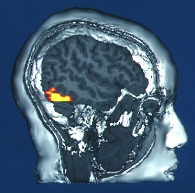 brain.DARPA.52009